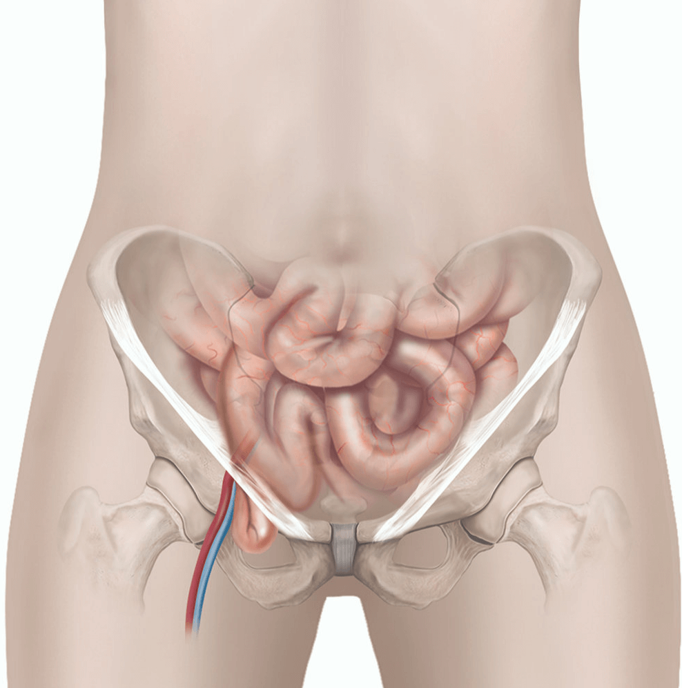 Femoral Hernia Repair Healthdirect
