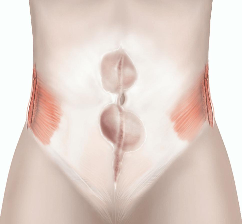 Open incisional hernia repair | healthdirect