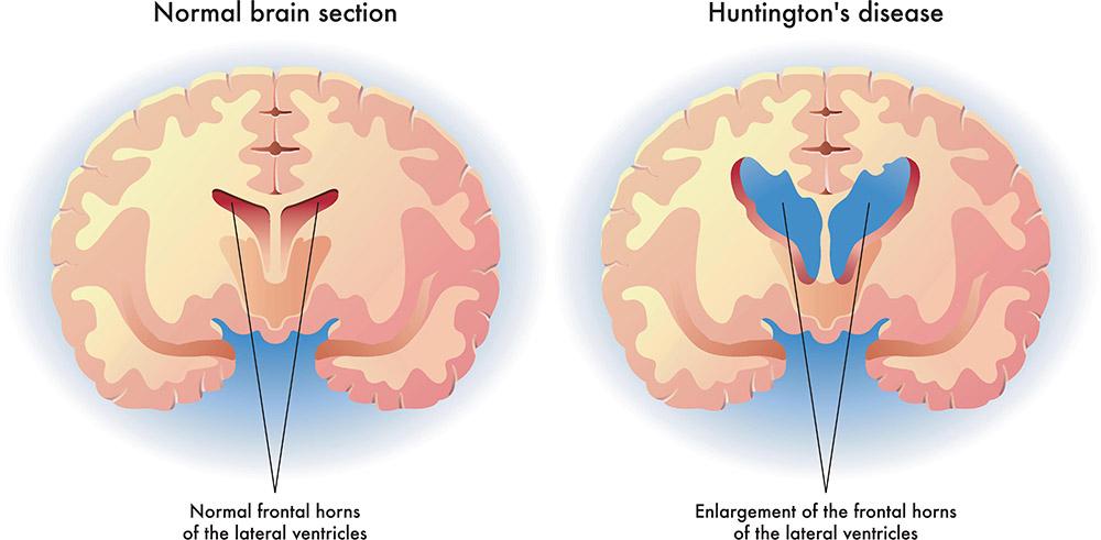 Huntington S Disease Healthdirect
