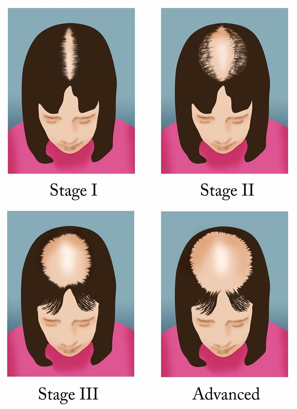 Female Pattern Baldness Healthdirect