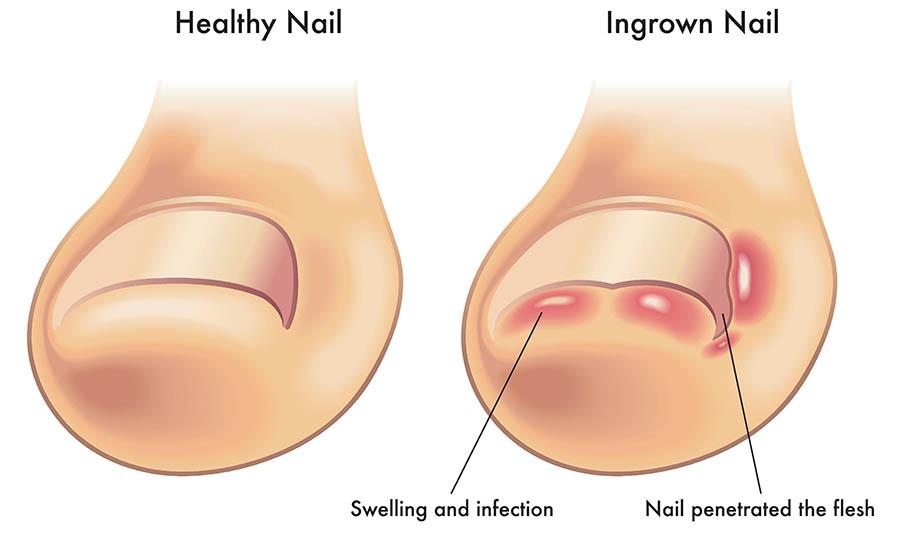 Ingrown Toenails Healthdirect