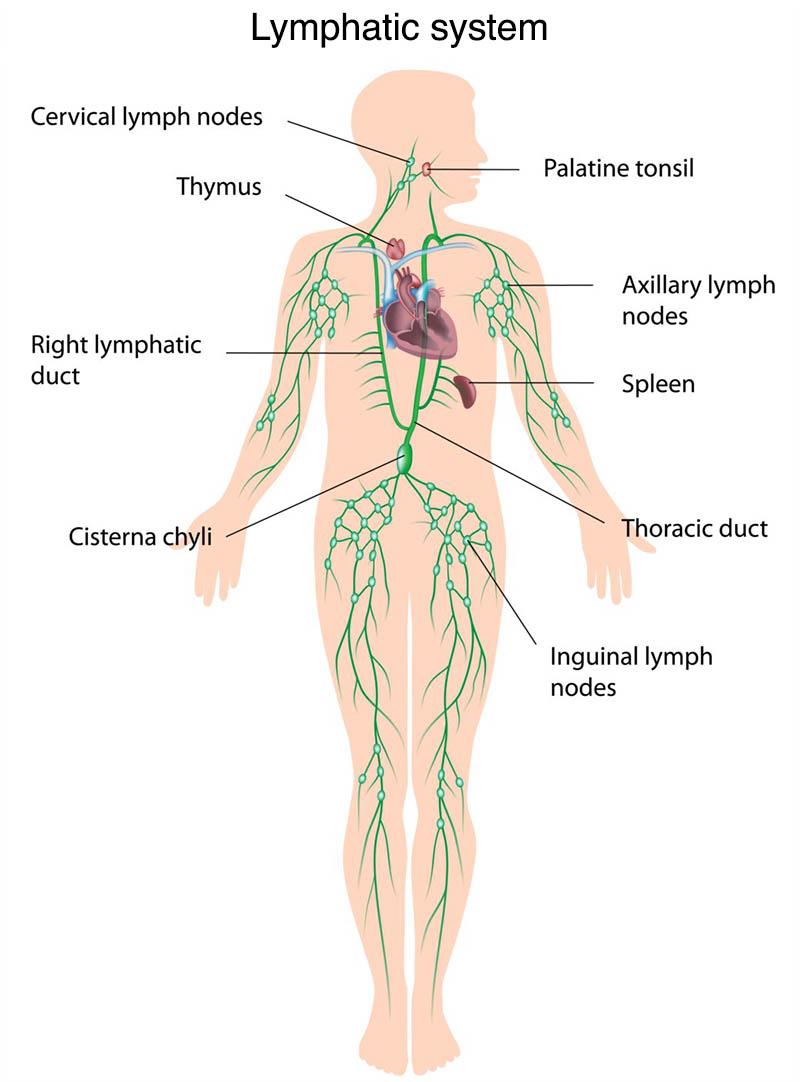 Archive issue, Aggressive cancer lymph nodes