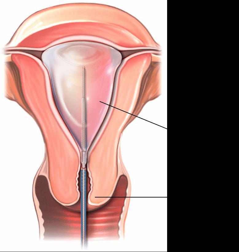 A tabletta megakadályozta az endometrium rák 400 000 esetét