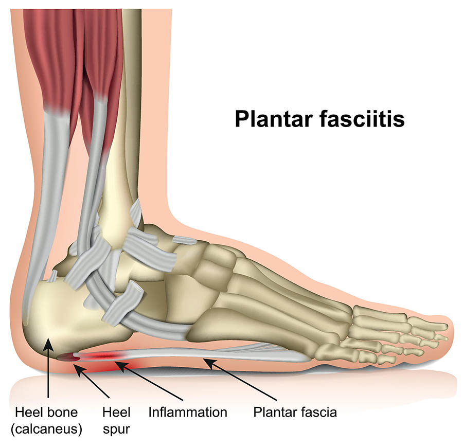 abcd394f39 Illustration showing plantar fasciitis.