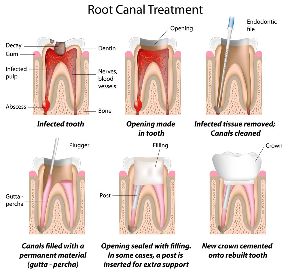 Root canal treatment | healthdirect