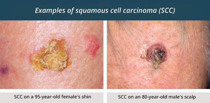Squamous Cell Carcinoma Healthdirect
