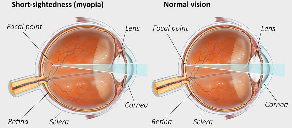g myopia kezelése)