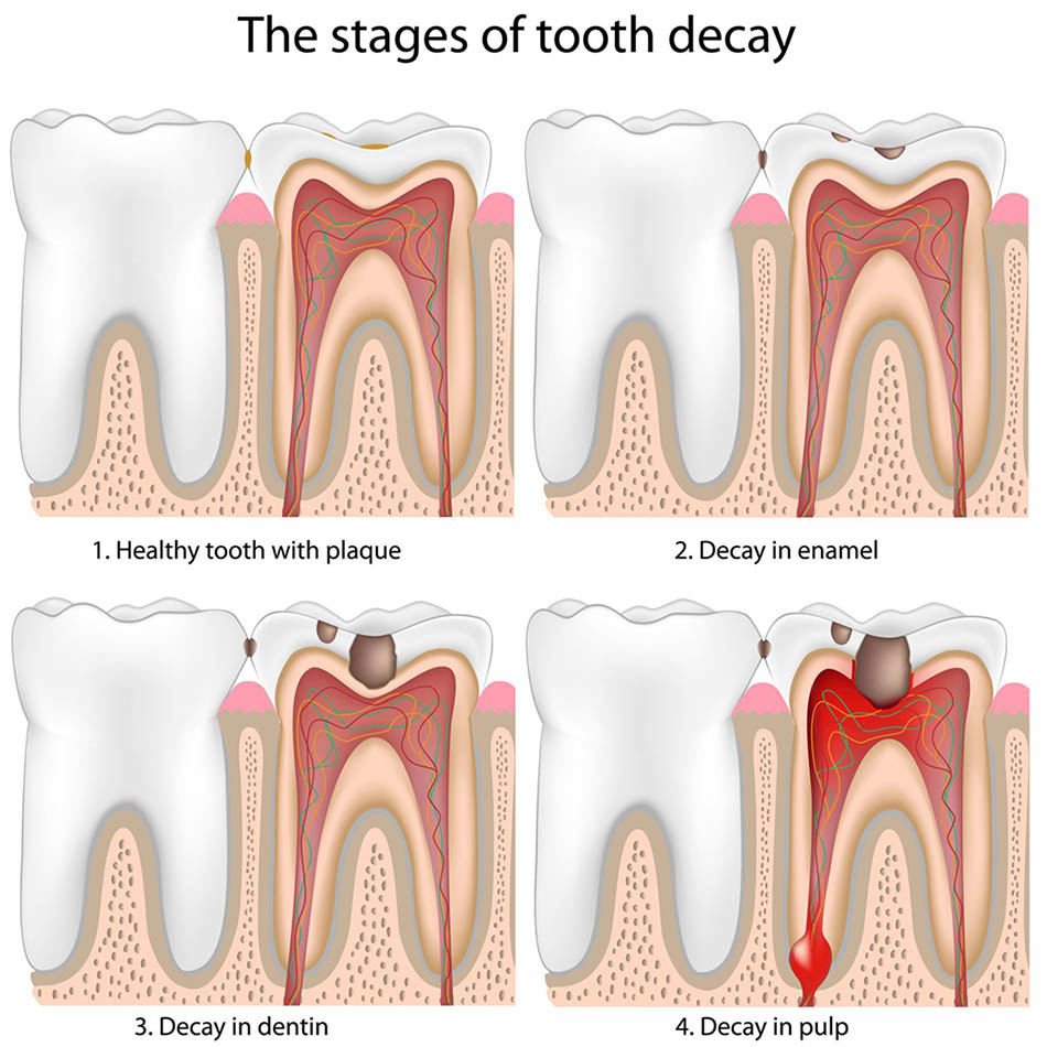 Tooth decay | healthdirect