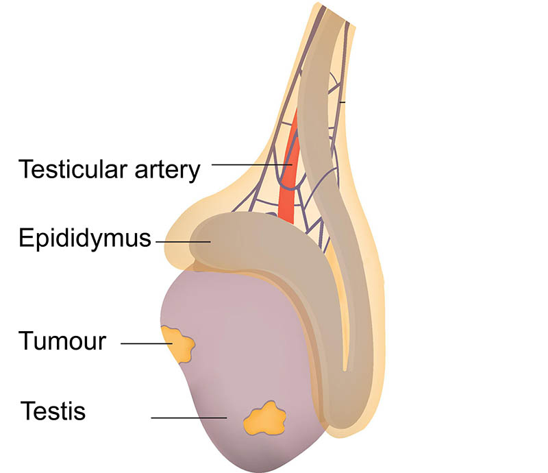Testicular Cancer Healthdirect
