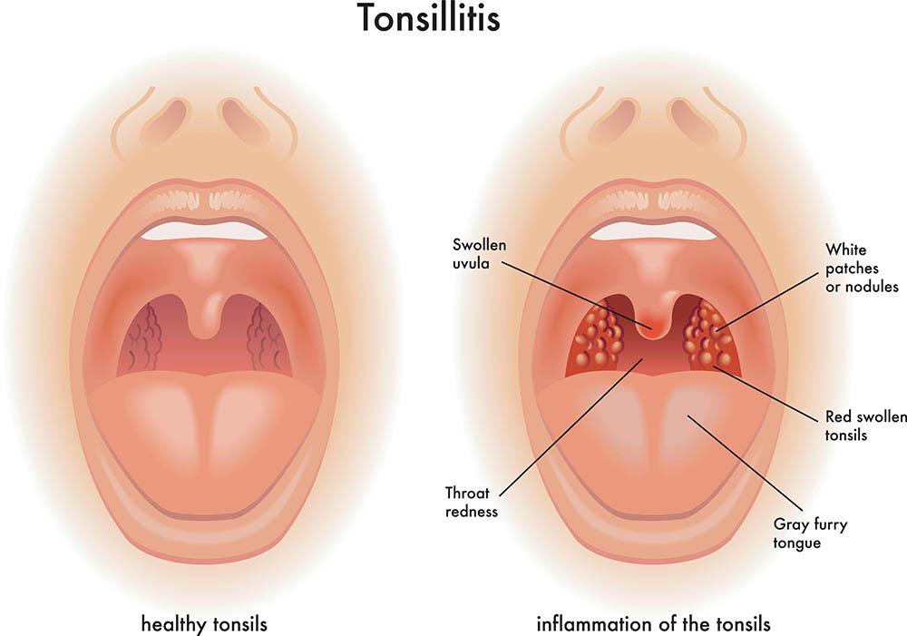 Tonsillitis | healthdirect