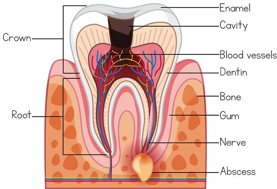 Tooth Abscess Healthdirect
