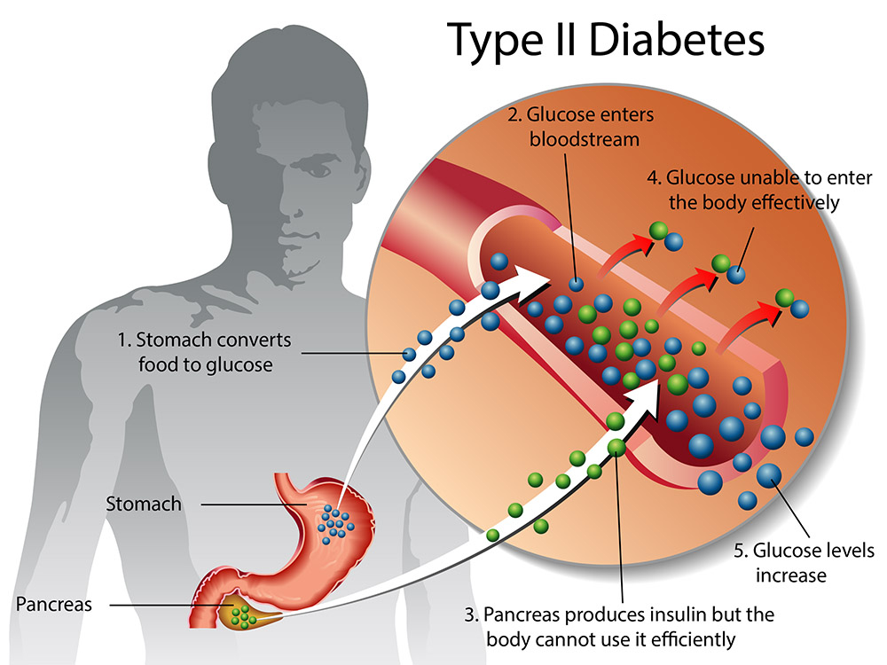 Type 2 diabetes | healthdirect