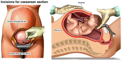 Images Showing How A Baby Is Born During A Caesarean