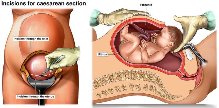 Caesarean Pregnancy Birth And Baby
