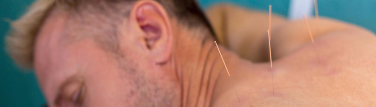 Image of man receiving acupuncture treatment on his back.